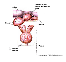 Prostate Gland Disease